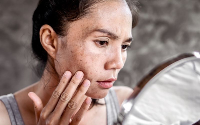 6 Unusual Habits Derms Swear By To Make Age Spots And Hyperpigmentation Vanish
