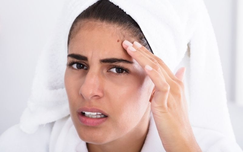 These 10 Remedies Cleared My Forehead Acne In Just 1 Week